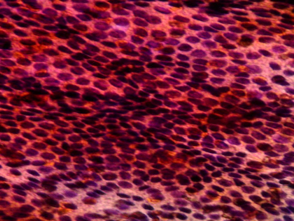 Fig. 2 aspetto citologico su agoaspirato tiroideo caratteristico di cellule benigne